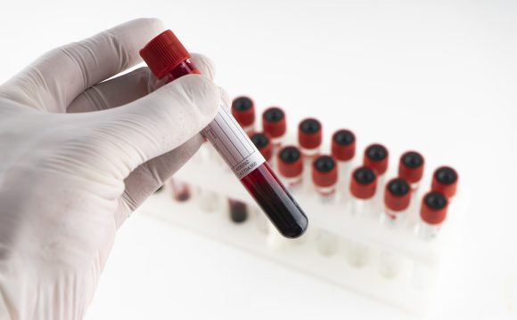 Biologie moleculara si testare RT – PCR in Spitalul Municipal Sfantul Ierarh dr Luca Onesti ( pentru diagnosticarea microbiologica si virusologica de precizie, inclusiv in infectii cu SARS-COV 2)