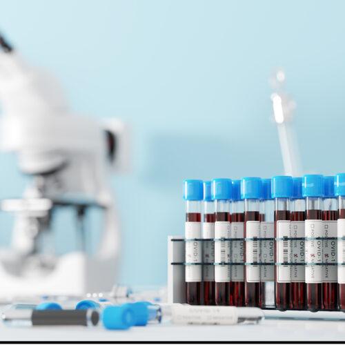 INFORMARE PRIVIND EFECTUAREA TESTULUI RT-PCR